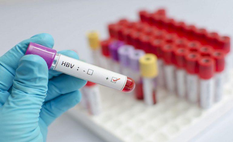 Xét nghiệm máu hết bao nhiêu tiền và những điều cần biết