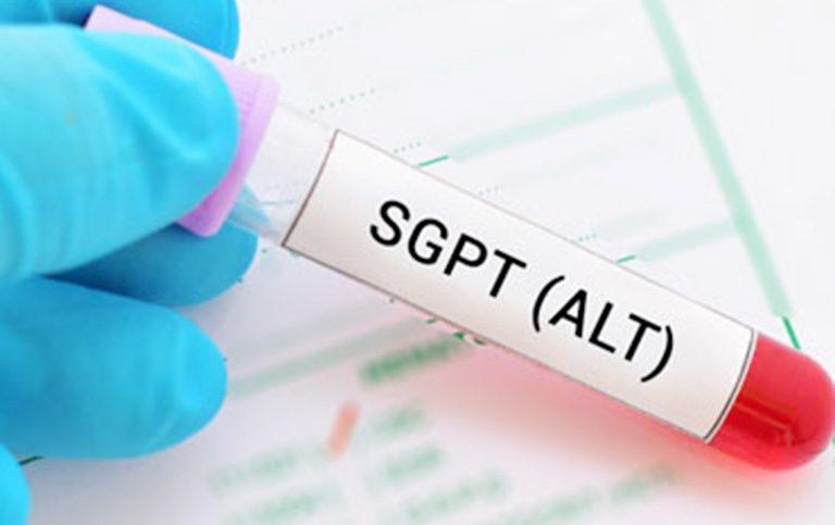 Chỉ số ALT là gì và khi nào cần làm xét nghiệm