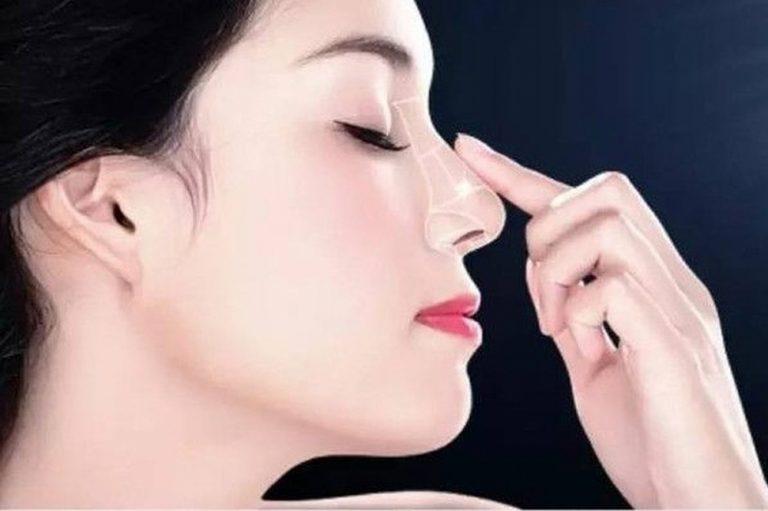 Nâng mũi sụn tự thân giữ được bao lâu và cách chăm sóc sau nâng